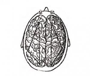 Рисунок 1. Поры электродов для оценки внутриполушорной когерентности используемые в настоящем исследовании