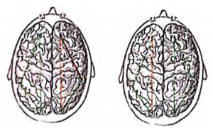Рисунок 3. Визуализация изменений внутриполушарной когерентно сти у здоровых добровольцев: А (слева) — при условии закрытых глаз: Б (справа) — при услинии о!крьмых 1лаз (рисунок В.В. Народовой) Приме*юние: зеленый цвет — отсутствует статистически значимый рост КК: оранжевый цвет — умеренный рост КК: красный цвет — выраженный рост КК.