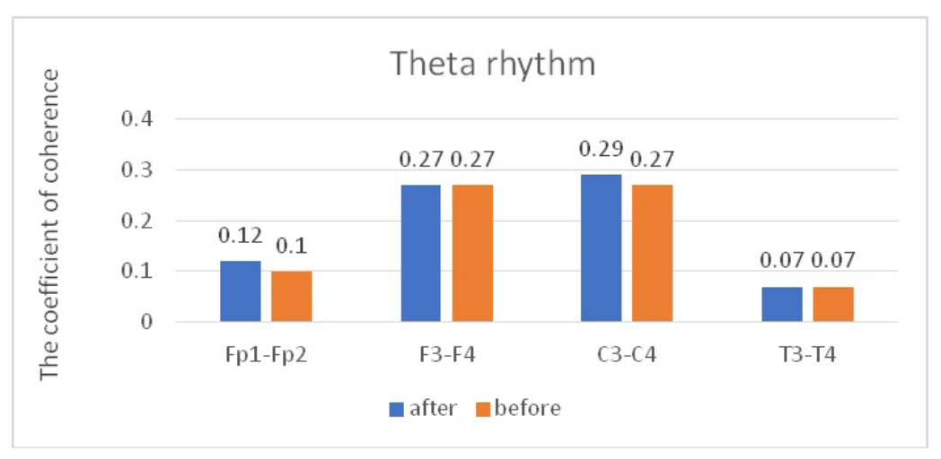 Fig. 4. Main characteristics of IC in healthy volunteers in the theta band: blue column – before WT; orange column – after WT.