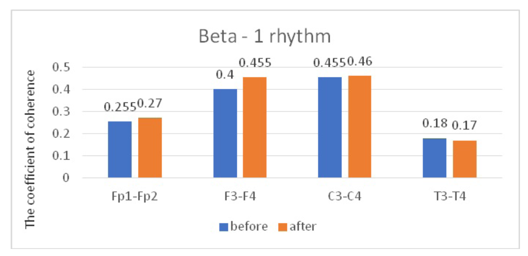 Fig. 5. Main characteristics of IC in JME patients in the beta-1 band: blue column – before WT; orange column – after WT.