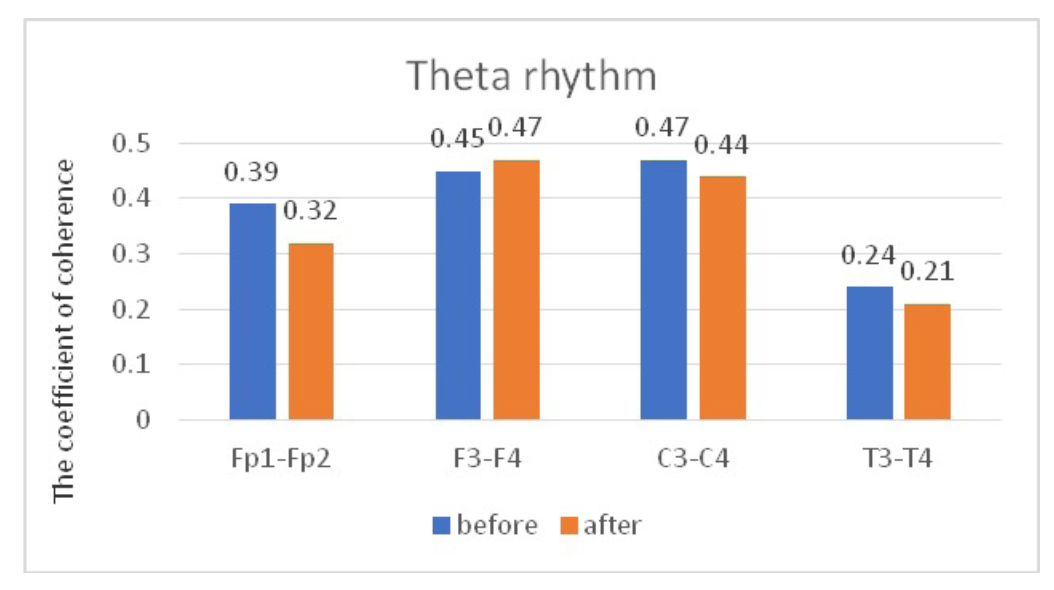 Fig. 6. Main characteristics of IC in JME patients in the theta band: blue column – before WT; orange column – after WT.