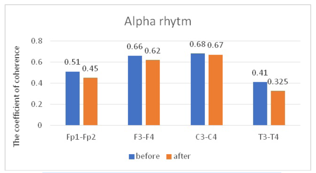 Fig. 7. Main characteristics of IC in JME patients in the alpha band: blue column – before WT; orange column – after WT.